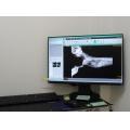 レントゲンで撮影した画像は、直ぐに各診察室に送ることができます。